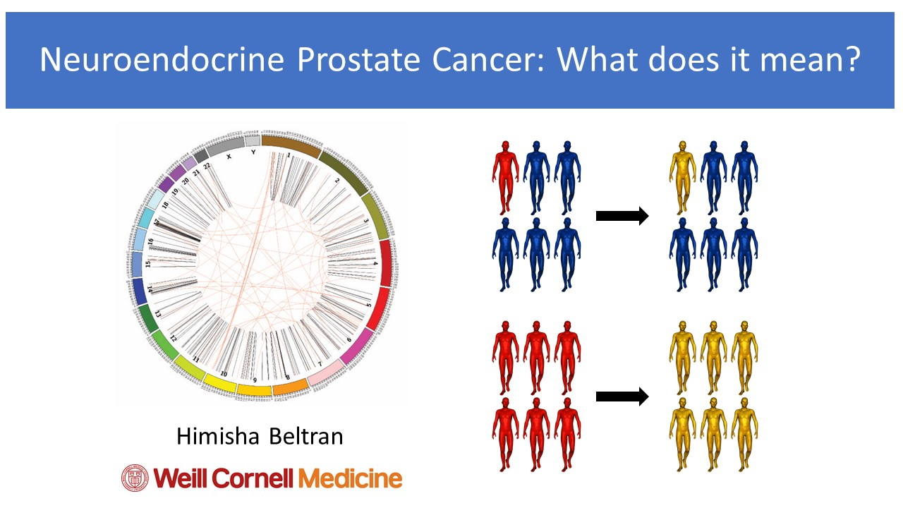 neuroendocrine cancer and prostate)